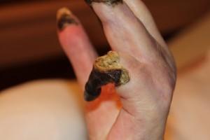 Linke Hand. 5. Finger kann nicht mehr bewegt werden